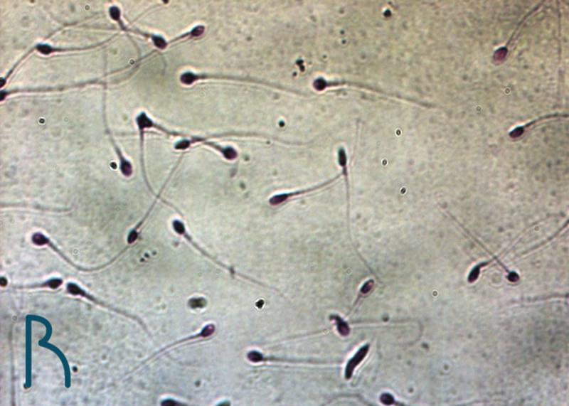 რეპროარტი სპერმის დიაგნოსტიკა, reproarti spermis diagnostika